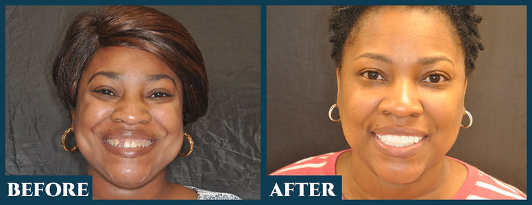 Before & After112.jpg
