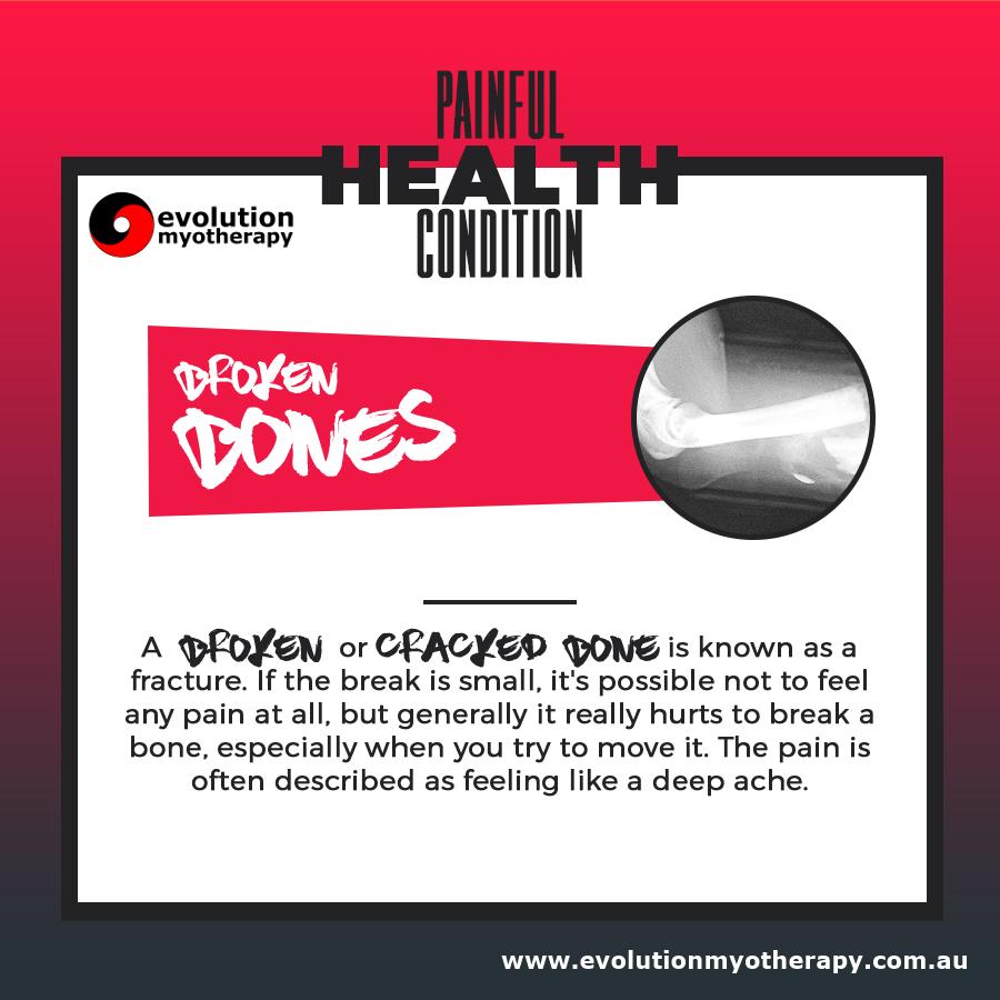 Painful Health Conditions: Broken Bones (Fractures)