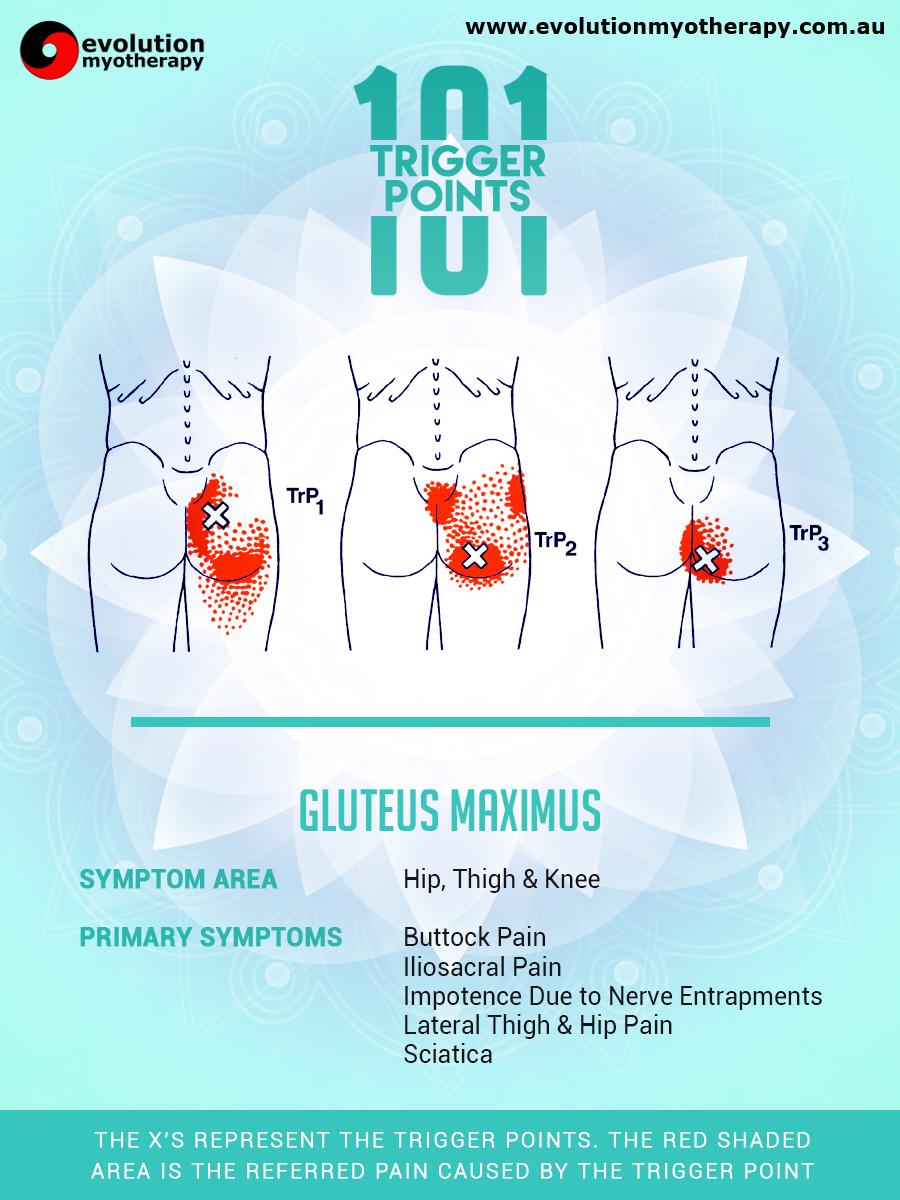 Trigger Points 101: Gluteus Maximus