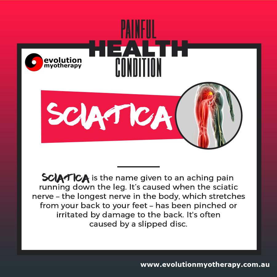 Painful Health Conditions: Sciatica