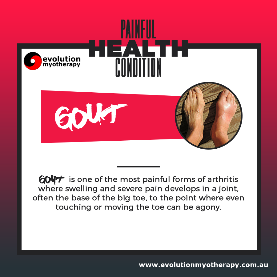 Painful Health Conditions: Gout