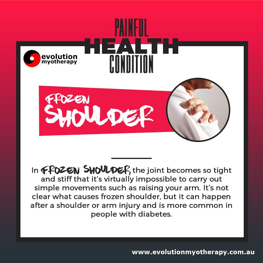 Painful Health Conditions: Frozen Shoulder