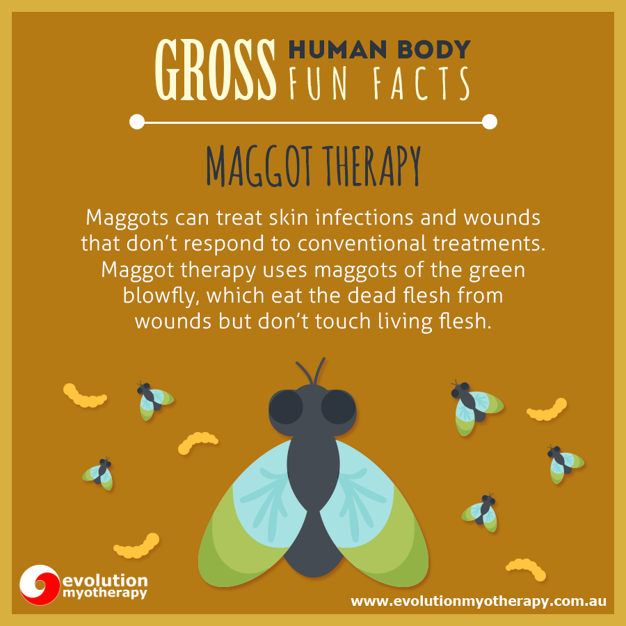 Gross Human Body Facts #4: Maggot Therapy