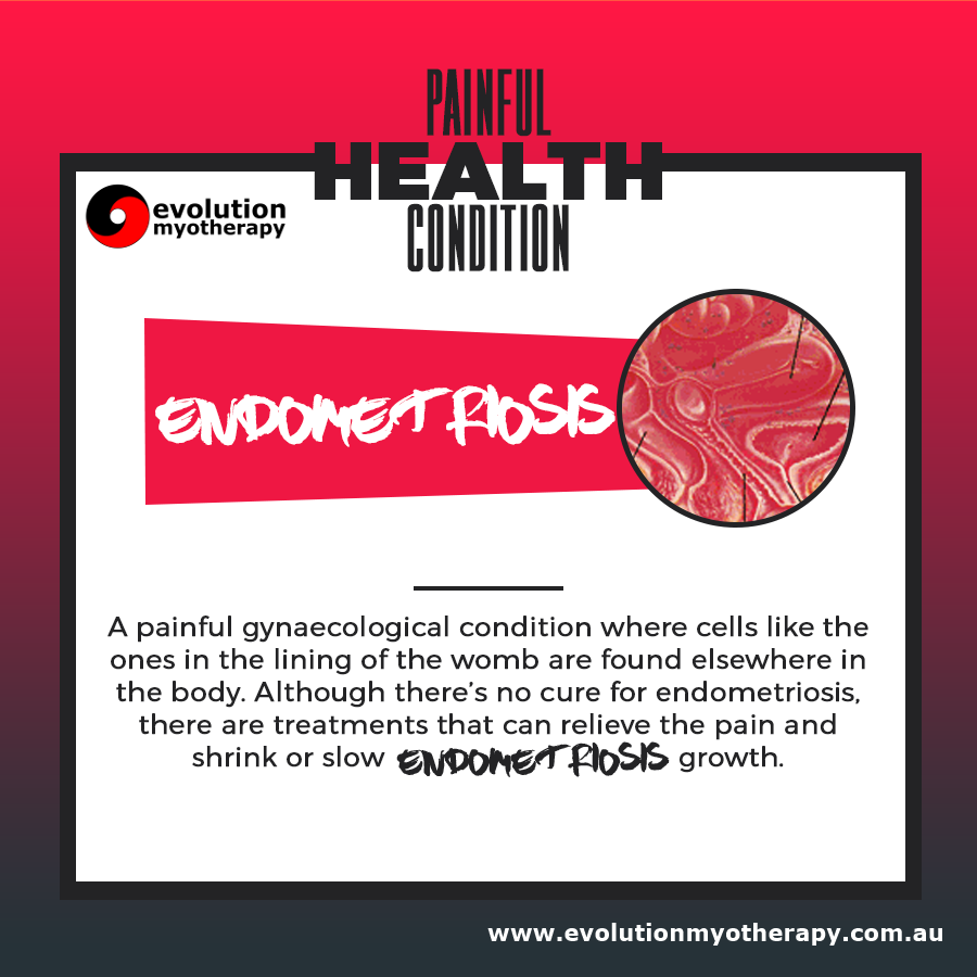 Painful Health Conditions: Endometriosis