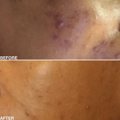 Before After Cheek Photo REVISE2.jpg