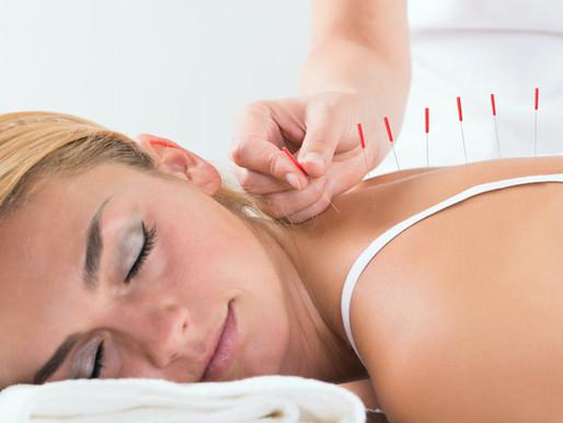 Stressreduktion im GAP Prevent:  Akupunktur als fester Bestandteil der Gesundheitsprogramme
