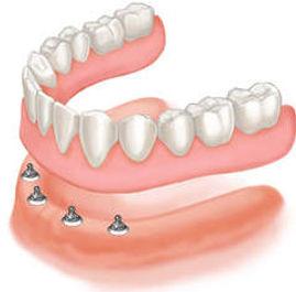 implants 123.jpg