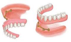 implants5.jpg