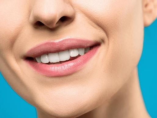 Kuinka kauan hampaiden valkaisu säilyy?
