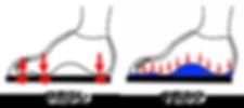 足底板(インソール)の効果