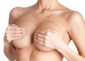 Equívocos comuns sobre mamoplastia de aumento e mastopexia