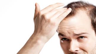 8 mitos sobre queda de cabelo