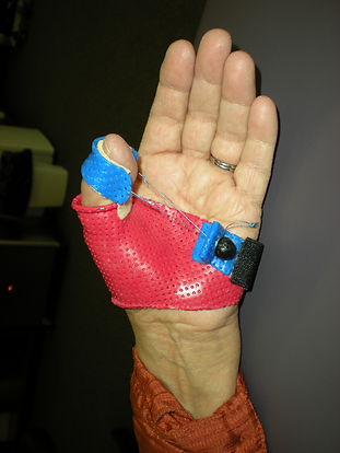 Custom Splinting Ggreenphysio