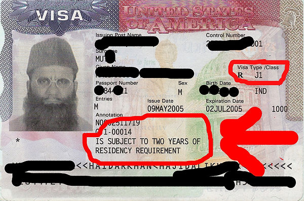 Subject to two year residency requirement for J Visa