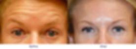 before-after-botox-filler-600x219.jpg
