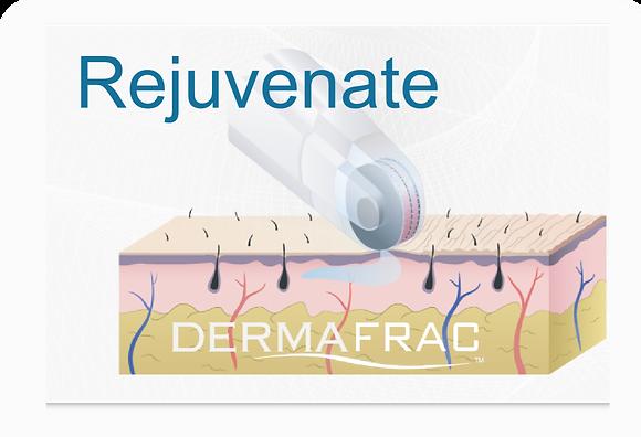 DermaFrac Micro-needling