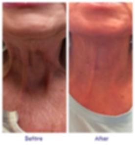 botox_neck2.jpg