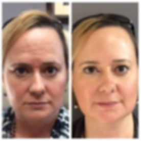 Botox-300x300.jpg