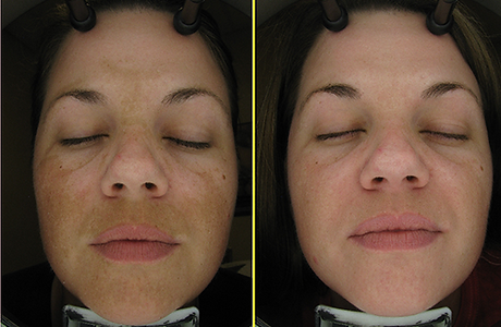 Chemical peel before and after.png
