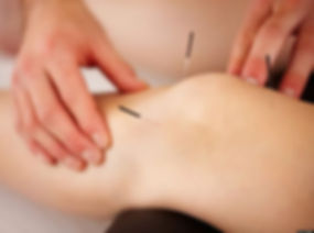 Acupuncture-physiotherapy_edited.jpg