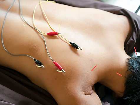 is_180806_electro_acupuncture_800x600-2.