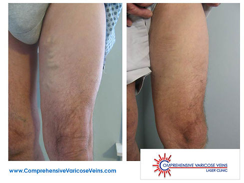 Man's thighs before and after being treated