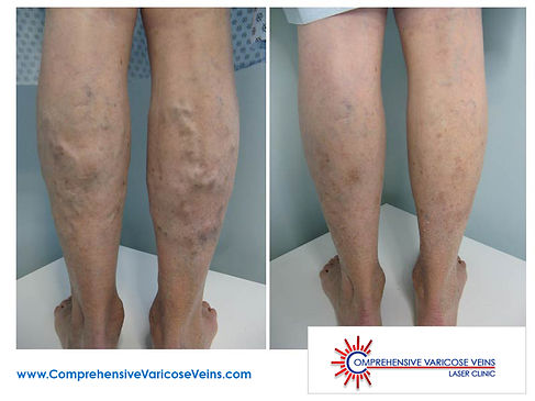 Man's lower legs before and after being treated.