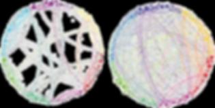 psilocybin brain networks