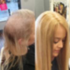 iHobbs Hairloss Solution