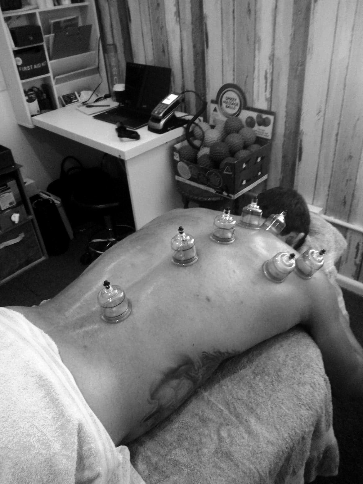 1hr Cupping & Massage