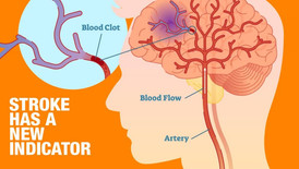 Identifying the warning signs of a stroke – You could save a life, PLEASE READ.