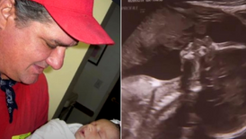 Astonished Mom-to-Be Realized Baby's Sonogram Shows Her Deceased Dad Kissing Baby