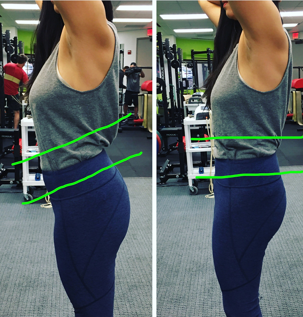Posture work for diastasis recti