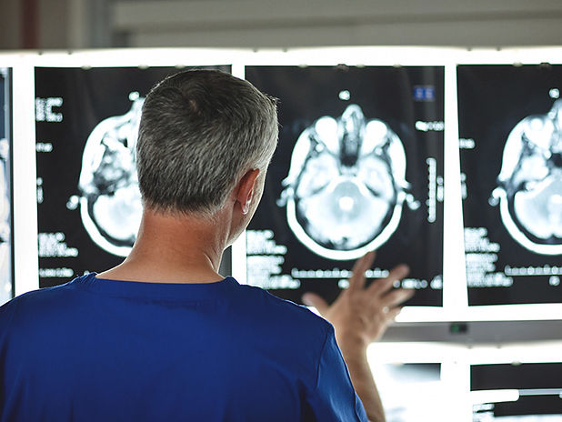 Brain_Scans_Doctor_Anonymous-732x549-Thu