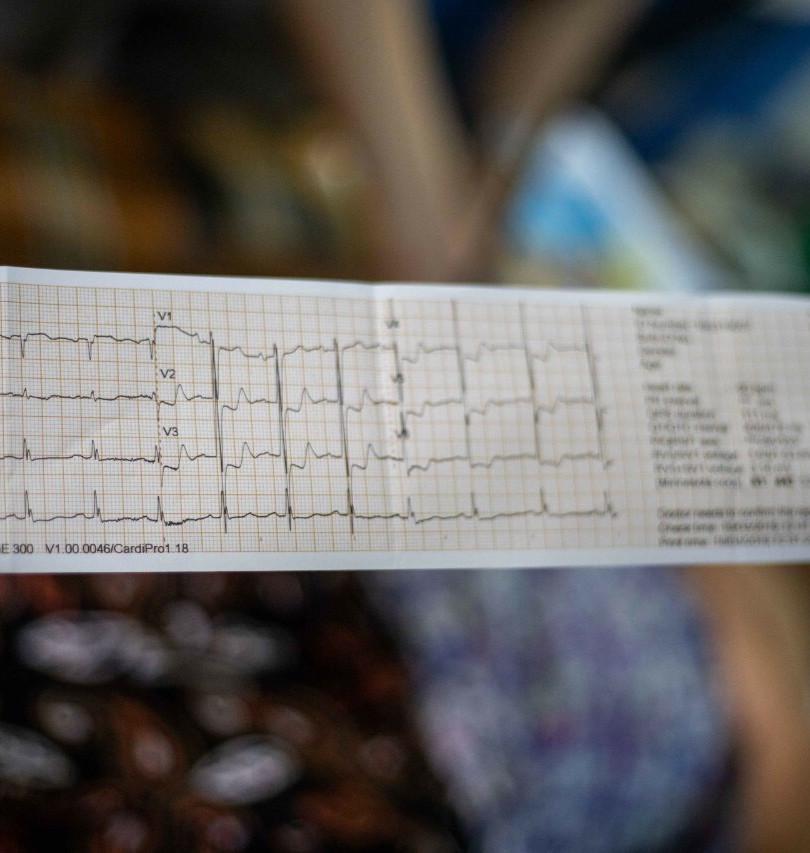 WHA Myanmar 2019 EKG .JPG