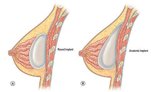 Prótese retroglandular