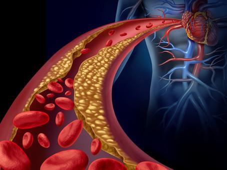 Coronavírus: colesterol alto é fator de risco?