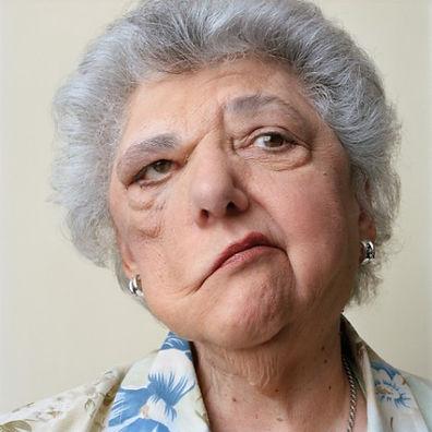 Paralisia-facial-5.jpg