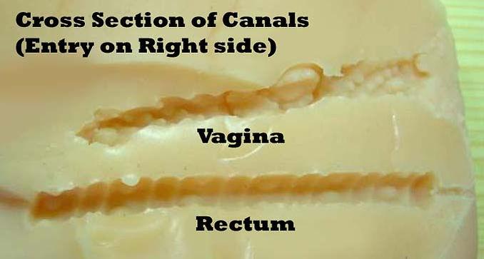 cross section vagina rectum.jpg