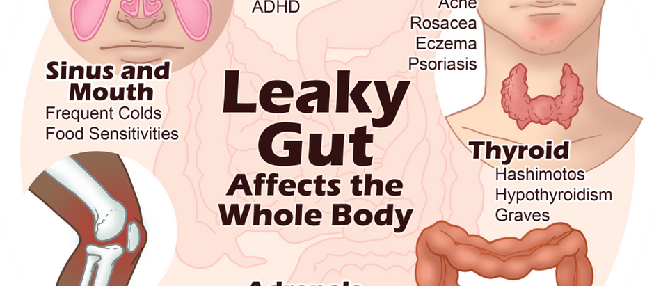 GMOs in our food and Intestinal Permeability (a.k.a. Leaky Gut)