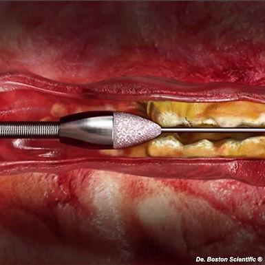 La Aterectomía rotacional