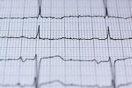 Electrocardiograma en reposo