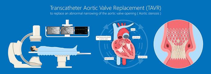 ¿Cómo se lleva realiza el Implante Percutáneo de la Válvula Aórtica (TAVI)?