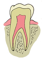 marshalltown iowa dentist dentistry dental office root canal