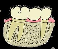 marshalltown iowa dentist dentistry dental office bridge