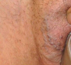 Genital Varis Tedavisi