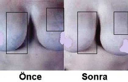 Memede damarlanma tedavisi
