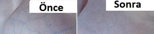 memede-damar-şişmesi 1.jpg