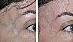 Göz çevresi damarlanması
