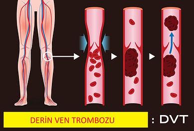 deep-vein-thrombosis-841813664.jpg